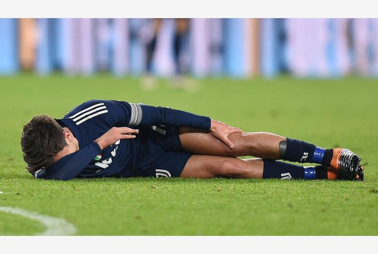 Juventus: Dybala stop 15-20 giorni, Chiesa ok