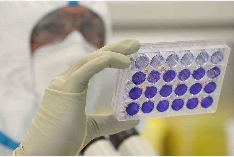 Variante nigeriana scoperta a Brescia, il virologo: 'Ora capire quanto è aggressiva e se resiste ai vaccini'