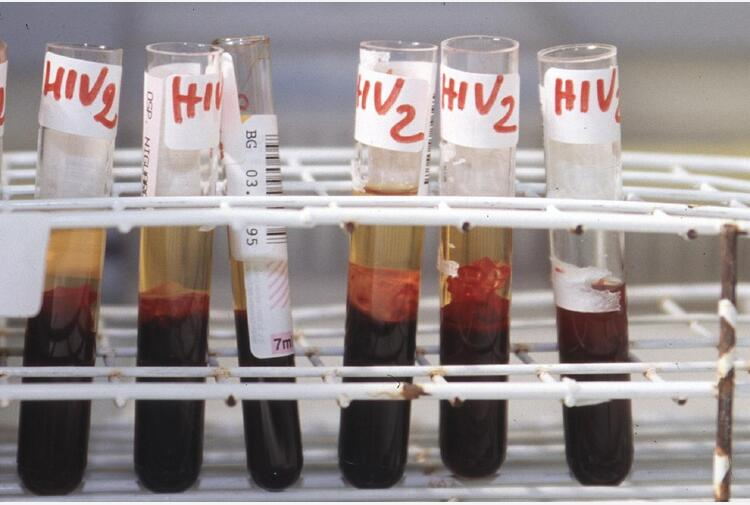 Aids: ViiV, efficace switch verso regime a 2 farmaci