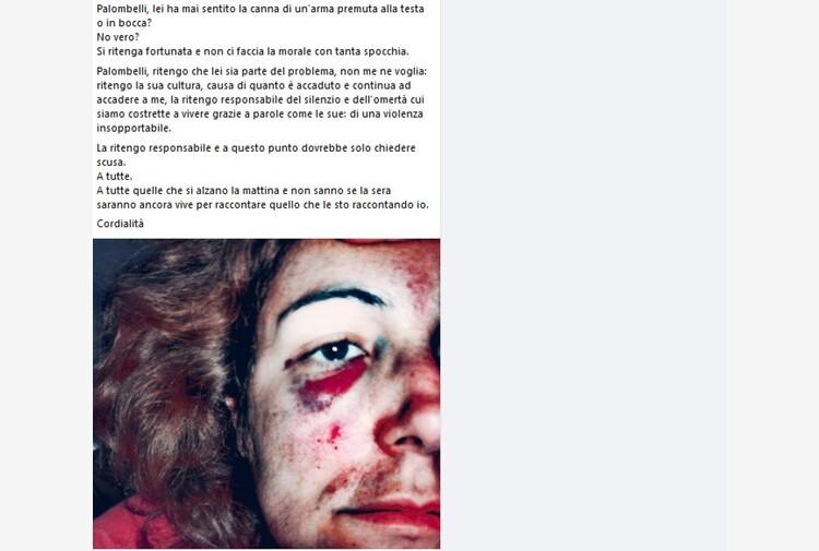 'Io maltrattata, Palombelli ha mai avuto pistola alla testa?': la foto shock della consigliera di Oristano
